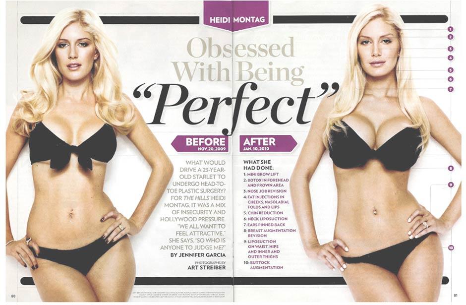 heidi montag surgery people. Reality TV shmuck Heidi Montag